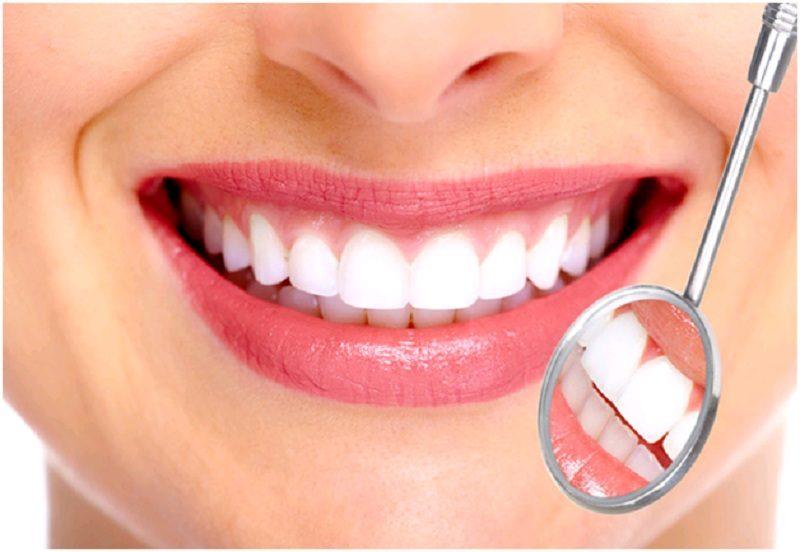 Cần có chế độ ăn uống hợp lý để bảo vệ răng sứ