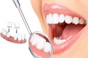 Quy trình bọc răng sứ chuẩn mang lại hàm răng đẹp như ý