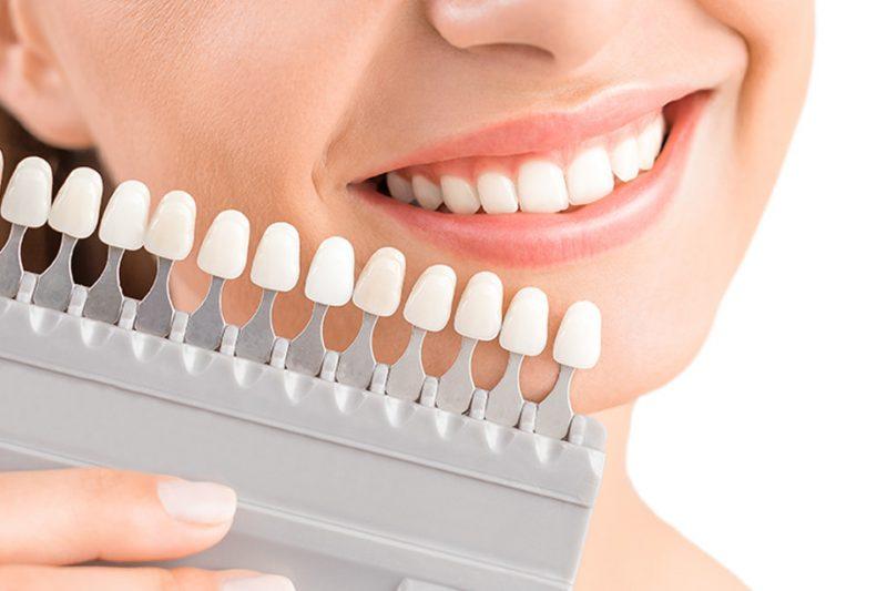 Răng sứ được gắn tạm lên khung hàm để bệnh nhân cảm nhận