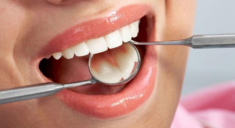 Quy trình lấy vôi răng chuẩn y khoa