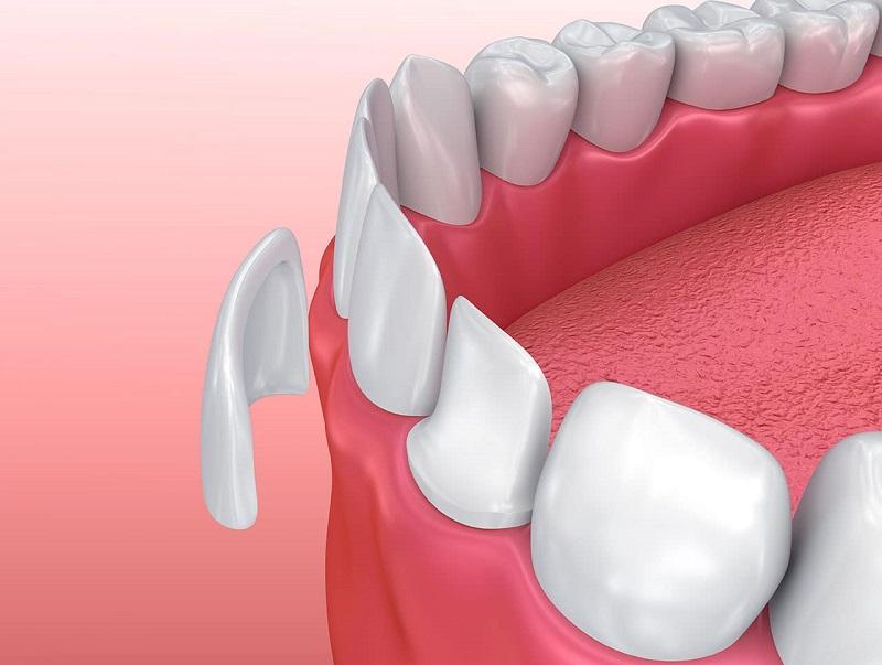 Răng sứ veneer là một công cụ được ứng dụng phổ biến trong nha khoa thẩm mỹ