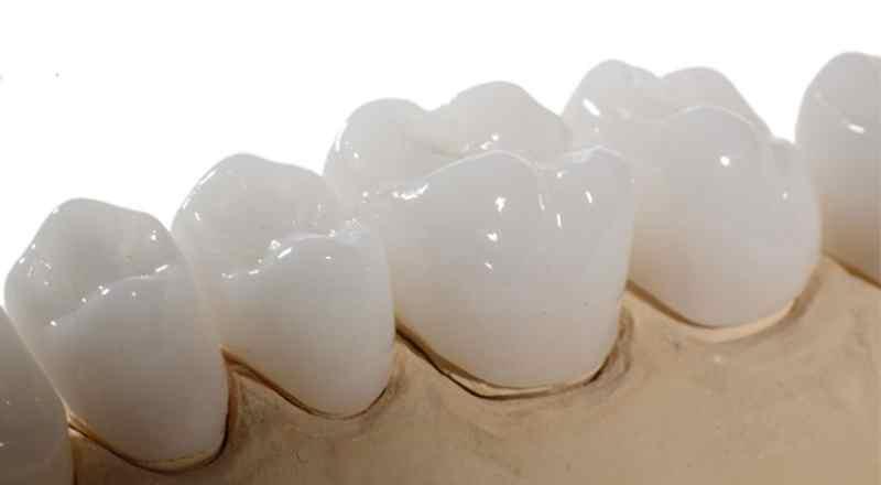 Khả năng phản quang của răng sứ không cao.