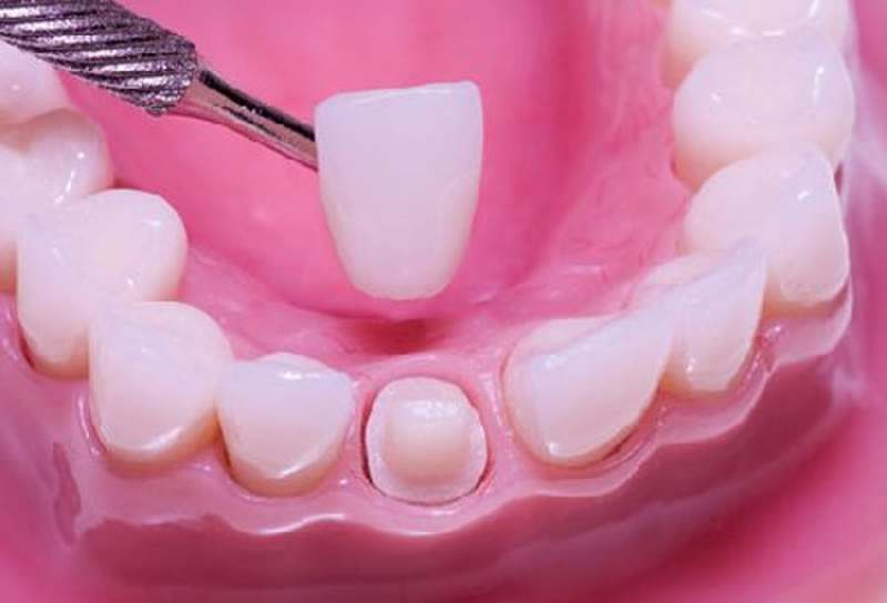 Quy trình bọc răng sứ cần được thực hiện một cách tỉ mỉ và cẩn thận.