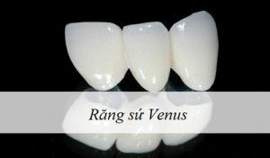 Răng sứ Venus: Tìm Hiểu Một Số Thông Tin Chi Tiết