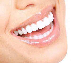 Răng sứ Zirconia có phải lựa chọn lý tưởng?