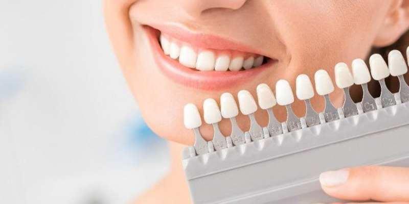 Màu sắc của răng sứ trùng với màu răng thật