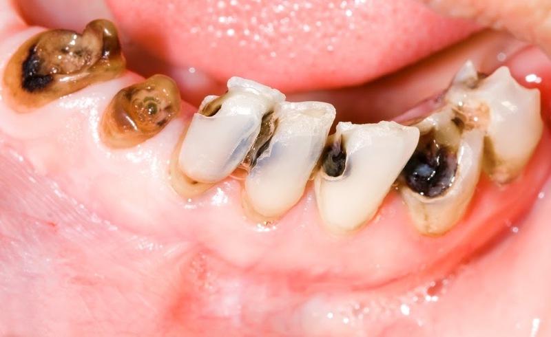 Răng sâu do sự tấn công của vi khuẩn vào mảng bám