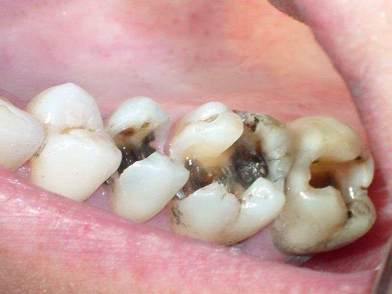 Hình ảnh bị sâu răng hàm