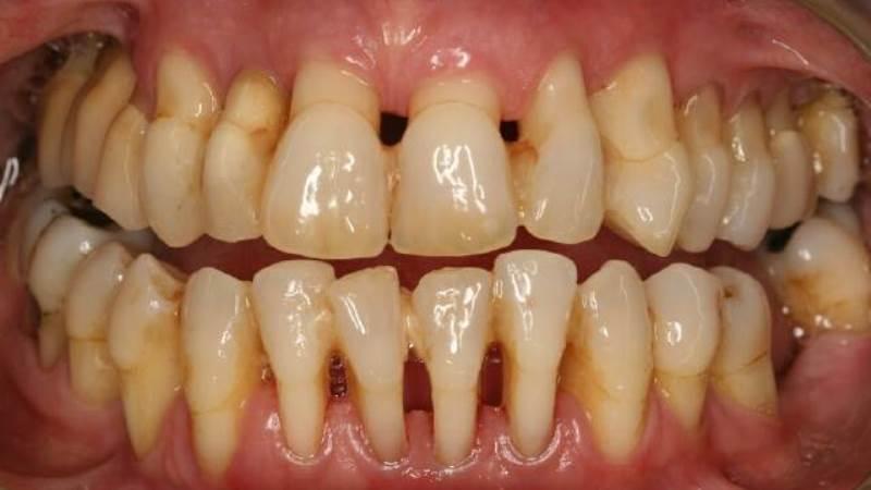Hình ảnh bị sâu răng ở vị trí tiếp xúc giữa 2 răng