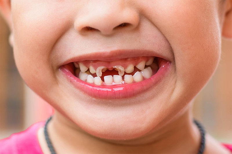 Sún răng là bệnh lý ở đường răng miệng thường gặp ở trẻ nhỏ