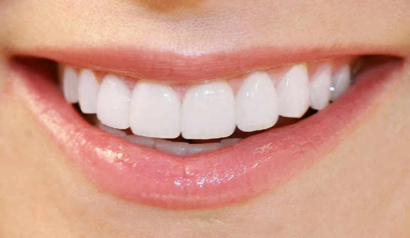 Răng sứ Titan có lớp sườn bên trong làm từ hợp kim Titan và phủ bên ngoài bởi lớp sứ cao cấp