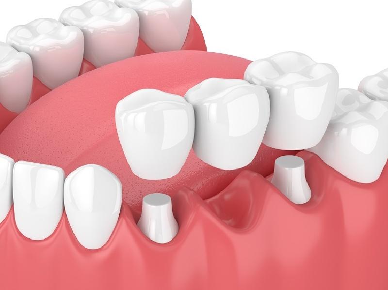 Phương pháp trồng răng sứ phục hình cố định (Cầu răng)