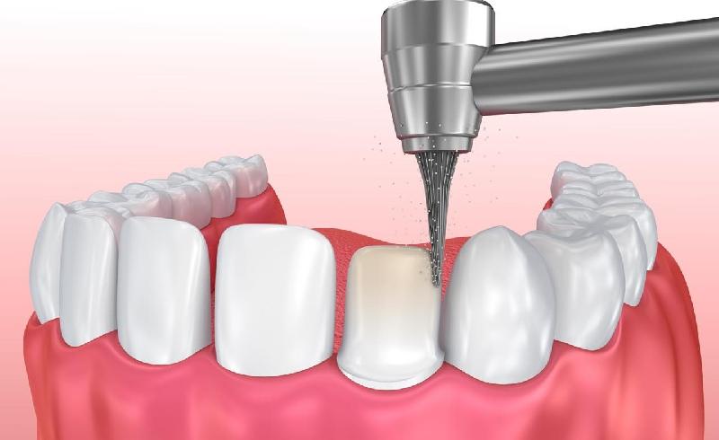 Để trồng răng sứ buộc phải mài đi lớp men bên ngoài để tạo cùi răng