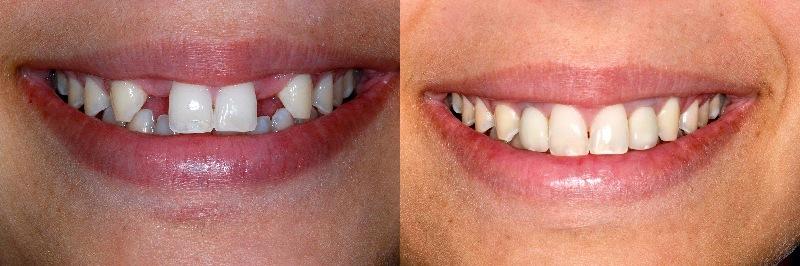 Trồng răng sứ là giải pháp hiệu quả khắc phục các khuyết điểm trên răng
