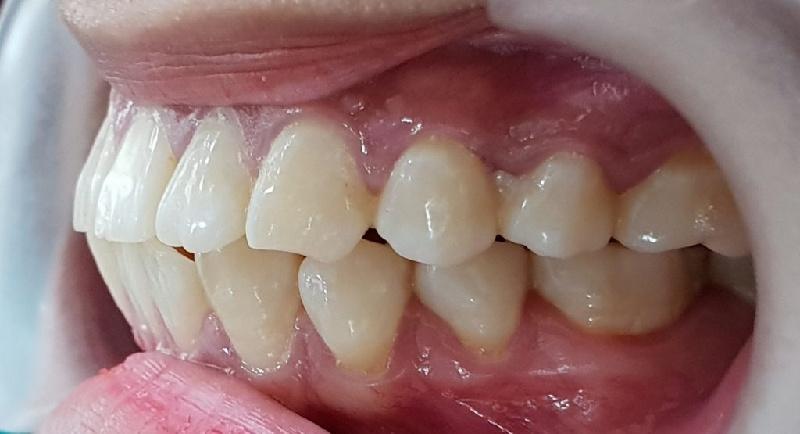Trường hợp răng bị hô móm nghiêm trọng nên niềng răng