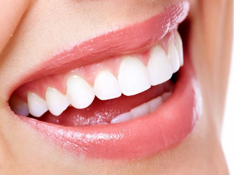 Trồng răng sứ là kỹ thuật nha khoa thẩm mỹ khắc phục các trường hợp bị mất răng, phục hình đối với những răng bị khuyết điểm
