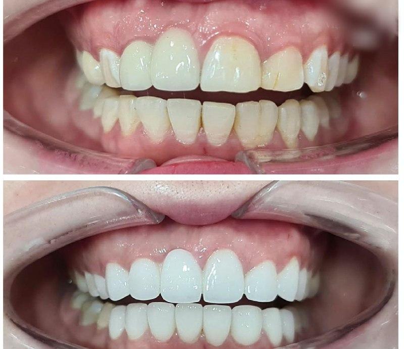Hình ảnh trước và sau khi bọc răng sứ