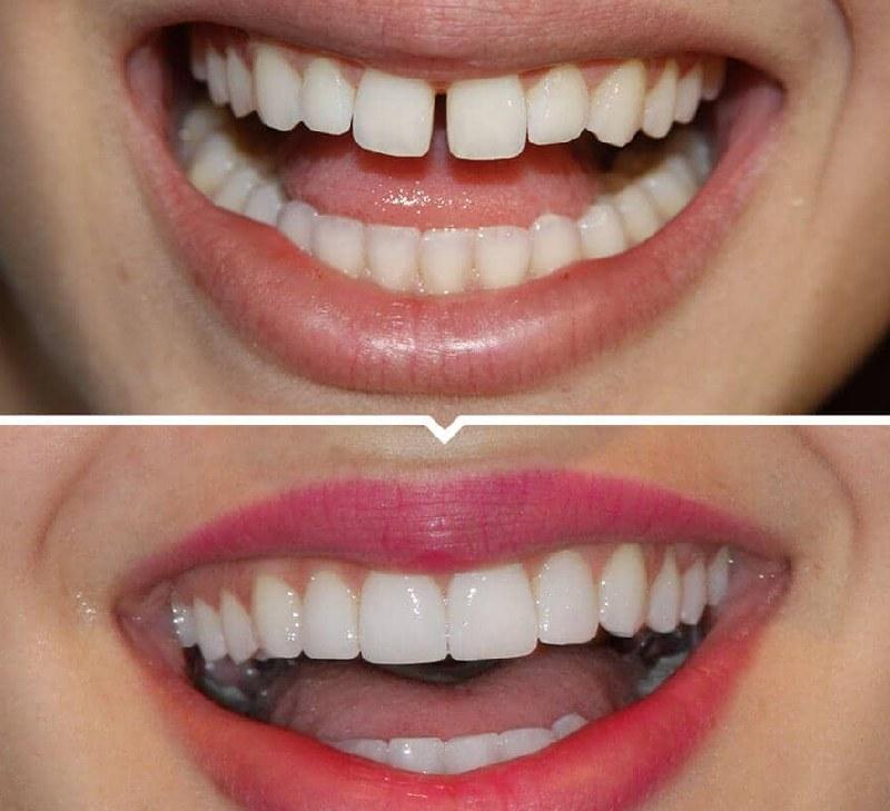 Một số trường hợp bọc răng sứ mang lại hiệu quả cao