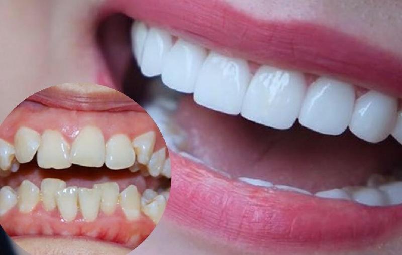 Trước khi bọc răng sứ cần chọn địa chỉ nha khoa uy tín