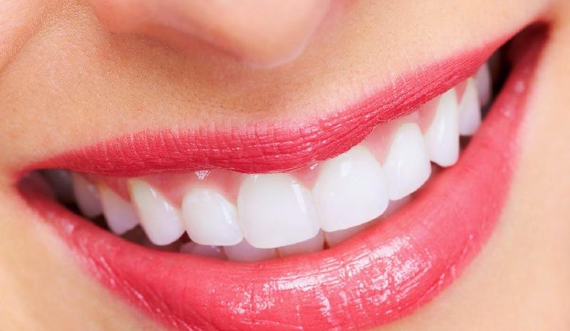 Sau khi bọc răng sứ cần có chế độ ăn uống, sinh hoạt khoa học, hợp lý