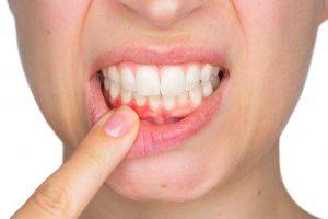 Bệnh lý viêm chân răng