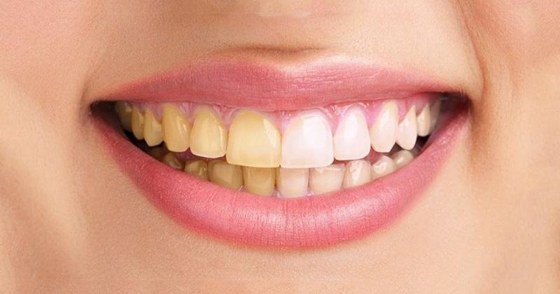 Cao răng không được lấy định kỳ là nguyên nhân gây bệnh nha chu