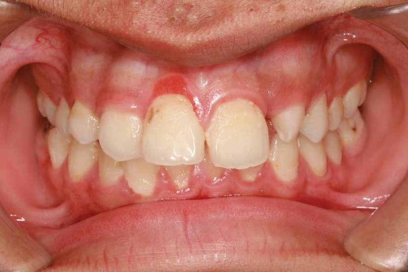Tìm hiểu về bệnh viêm lợi - nướu chân răng