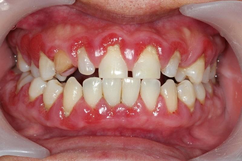 Chân răng và lợi có khoảng trống