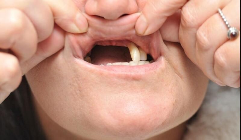 Khi không được can thiệp sớm, viêm lợi răng có thể gây ra nhiều hệ lụy xấu