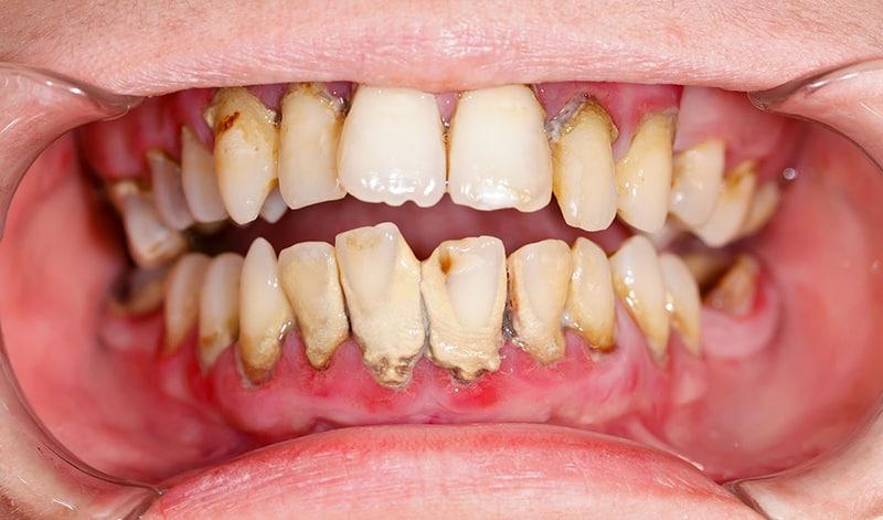 Vệ sinh răng miệng thiếu sạch sẽ có thể là nguyên nhân gây bệnh