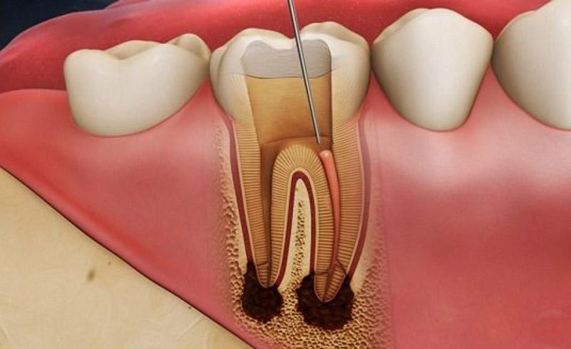 Hình ảnh viêm tuỷ răng