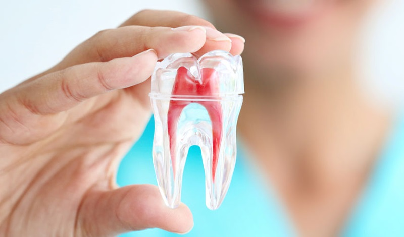 Trám bít ống tủy giúp bảo vệ răng khỏi các kích thích mới