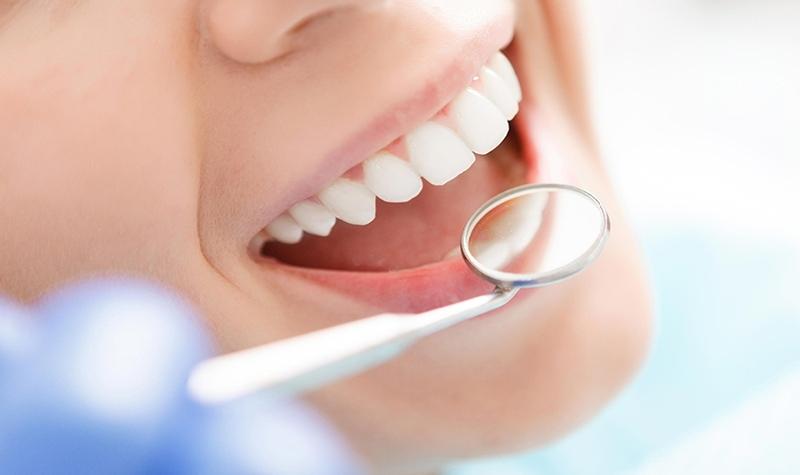 Bọc răng sứ giúp giải quyết các khuyết điểm của hàm răng mọc lệch lạc
