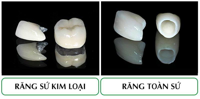 Răng sứ toàn sứ có tuổi thọ lâu hơn răng sứ kim loại