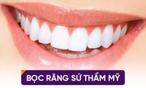 Có rất nhiều yếu tố ảnh hưởng đến bọc răng sứ có được vĩnh viễn không
