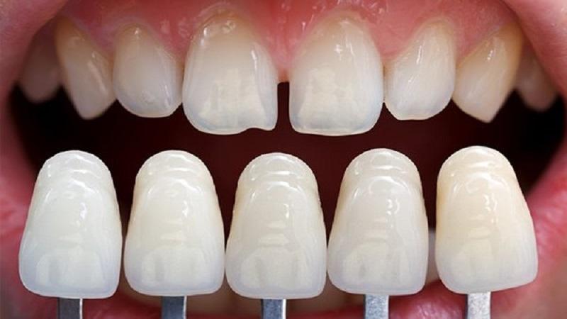 Kỹ thuật bọc răng sứ không cần mài răng nhiều giúp bảo tồn răng thật tốt hơn