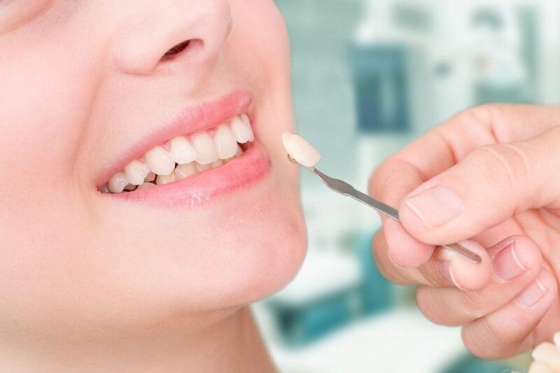 Răng bị lệch khớp cắn không phù hợp để thực hiện bọc răng sứ không mài