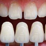 Việc hạn chế mài răng sẽ giúp răng chắc khỏe hơn