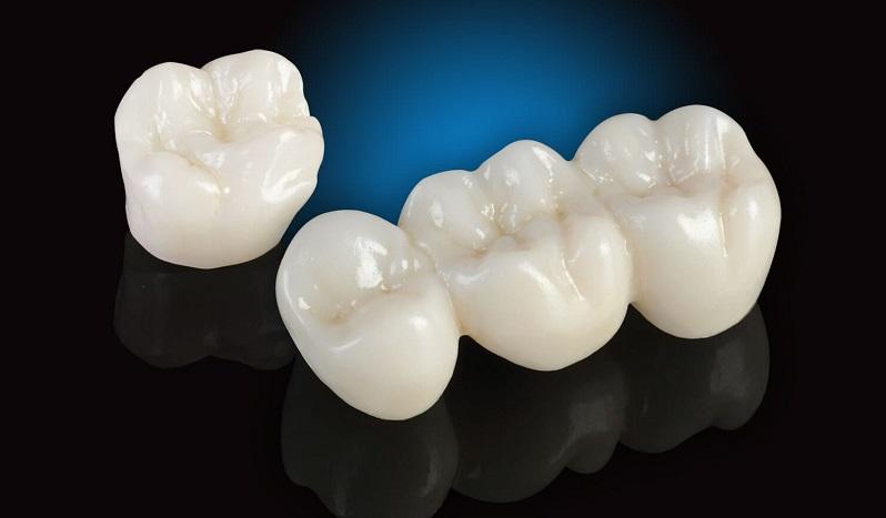 Răng toàn sứ không kim loại