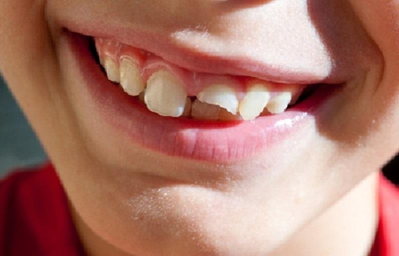 Người bị sứt mẻ răng có thể thực hiện bọc răng sứ không kim loại nếu có điều kiện