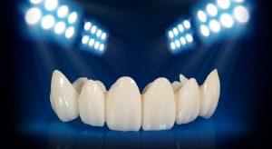 Bọc răng sứ không kim loại được xem là một cuộc cách mạng trong thẩm mỹ