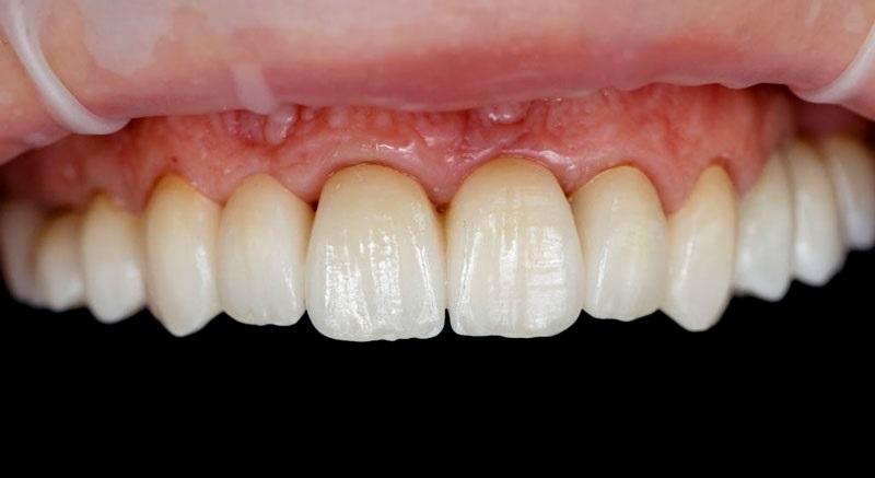 Bọc răng sứ kim loại thường