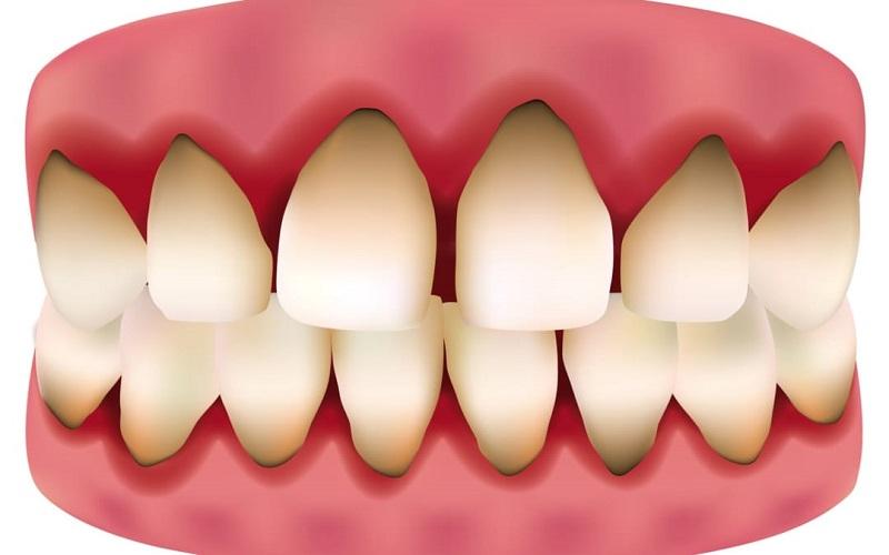 Răng sẽ bị đen chân nướu sau một thời gian dài sử dụng