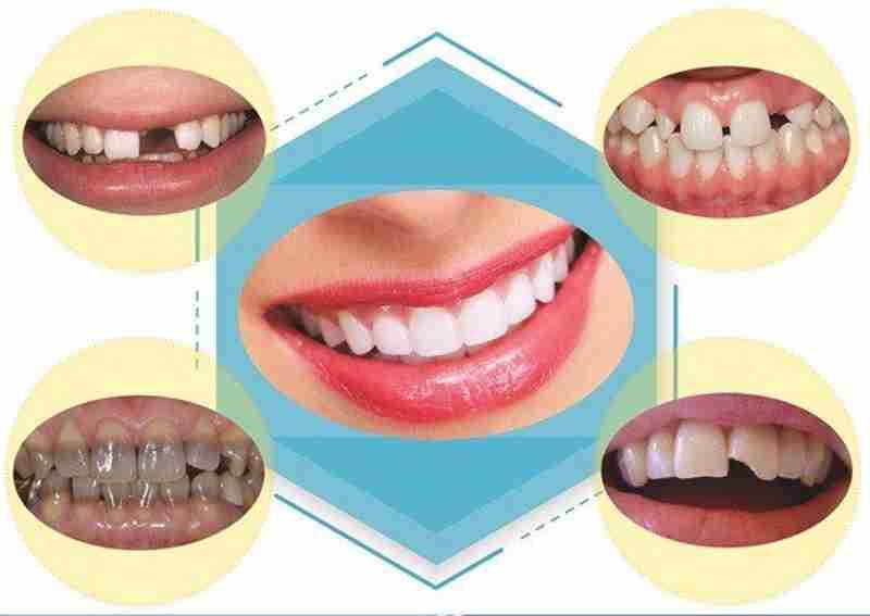 Bọc răng sứ giúp hàm răng trở nên đều và đẹp hơn