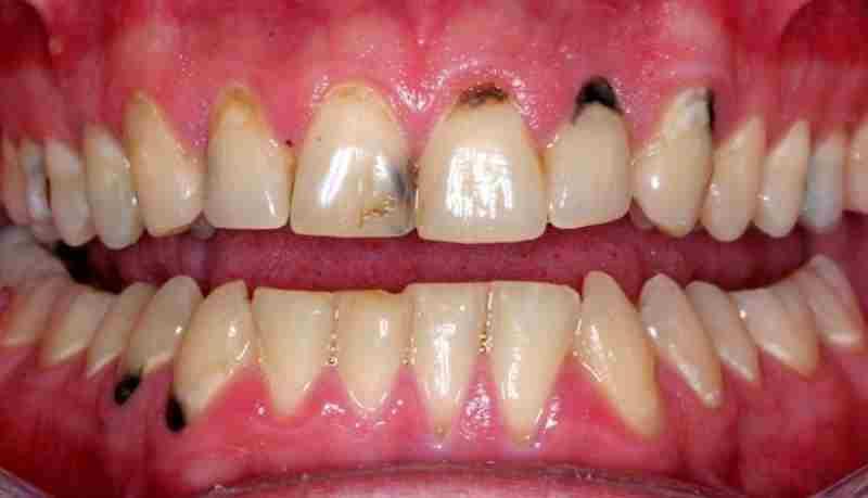 Tình trạng răng sâu quá nhiều có thể phục hình răng bằng cách bọc sứ