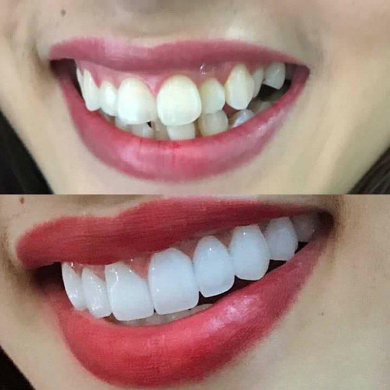 Sử dụng phương pháp bọc răng sứ để cải thiện hàm răng mọc lệch chen chúc sẽ mất ít thời gian hơn