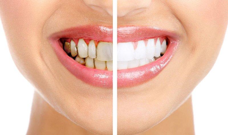 Răng bị ố vàng, xỉn màu cũng nên phục hình răng để có hàm răng trắng đẹp hơn