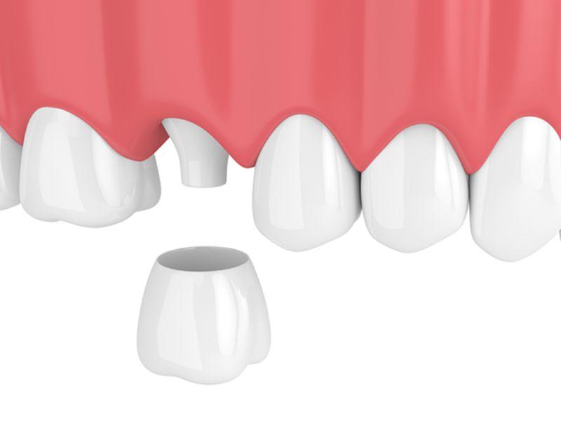 Bọc răng sứ, dán sứ Veneer, làm cầu răng sứ đều phải tiến hành mài răng