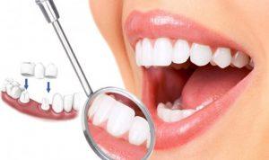 Mài răng bọc sứ sẽ không nguy hiểm nếu được thực hiện bởi 1 bác sĩ giàu kinh nghiệm