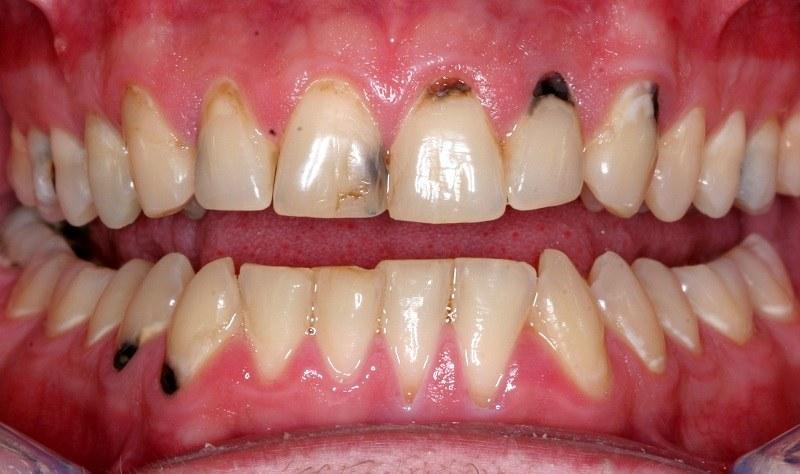 Nhược điểm của bọc răng sứ có thể xuất hiện tình trạng đen viền nướu.